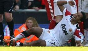 PICTURE: Nani Injury (not for the faint hearted)