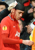 Smalling's Stitches Came Open